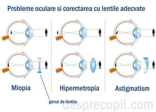 antiinflamatoare nesteroidiene în oftalmologie