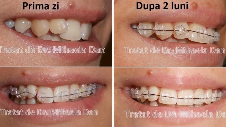 vederea s-a deteriorat după tratamentul dinților