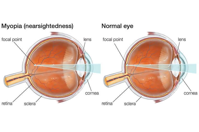 se tratează miopia