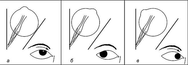 viziune și mușchiul ocular)