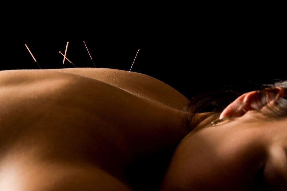 Acupunctura in tratamentul alergiilor
