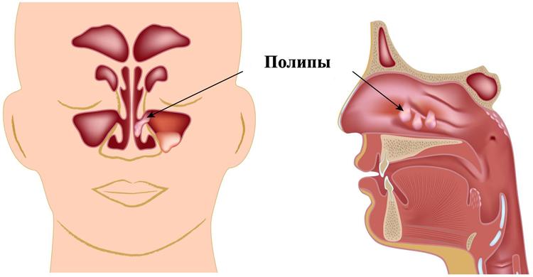 suspiciunea de polip endometrial)