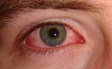 vedere și conjunctivită anemia agravează vederea
