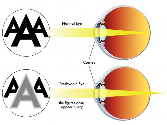 cum se tratează vederea dificilă