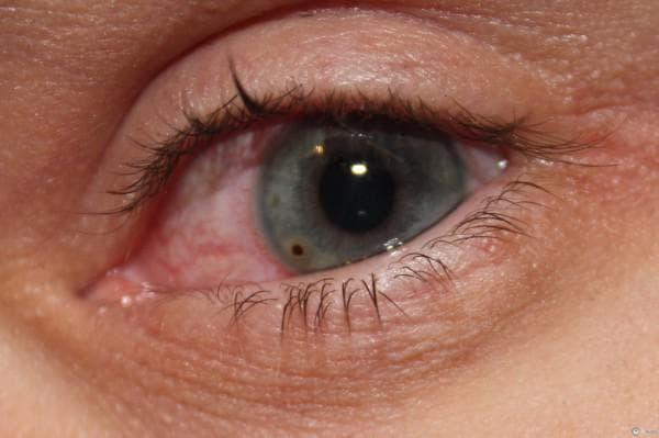 Tratamentul și prevenirea inflamației oculare la conjunctivită la nou-născuți și sugari