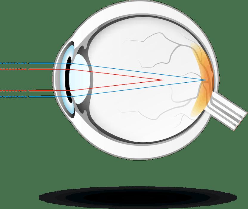 vedere încețoșată și cercuri în fața ochilor cum se măsoară acuitatea vizuală