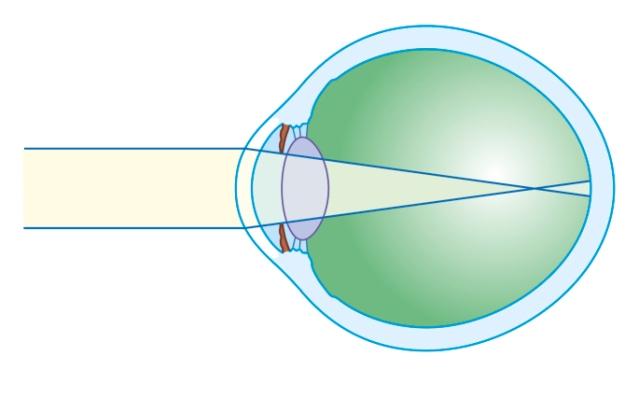 miopia este câte dioptrii