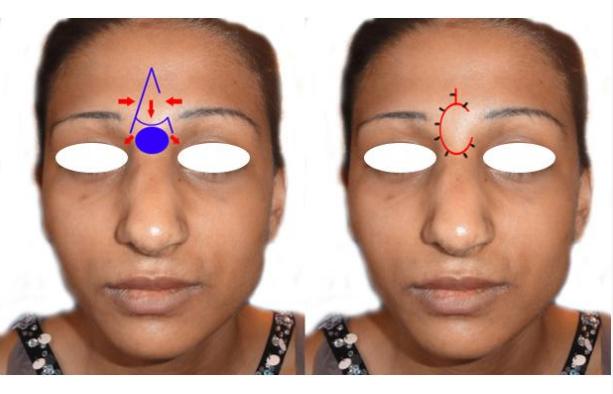 afectează nasul vederea