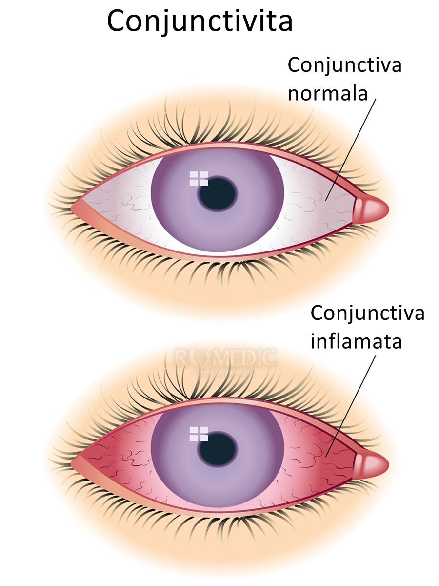 îngrijirea oftalmică a ochilor)
