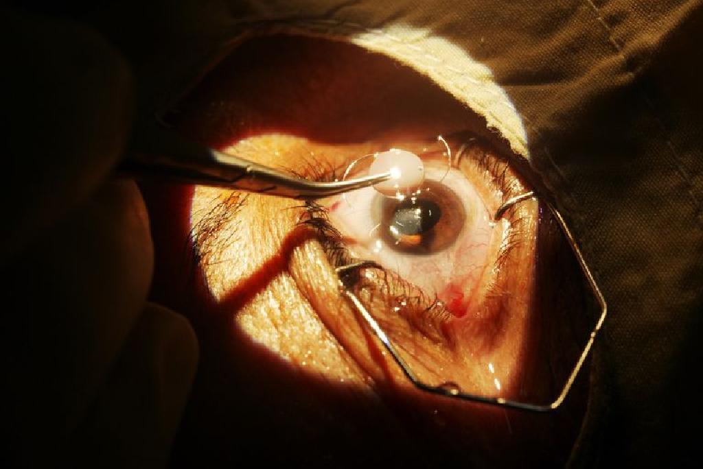 Chirurgia cataractei - pregătire și procedură