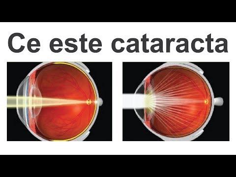cataractă complicată de miopie viziune la suprasarcină