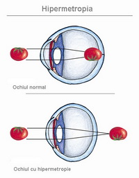 vedere placentară gradul 2 cancer de ochi cauze