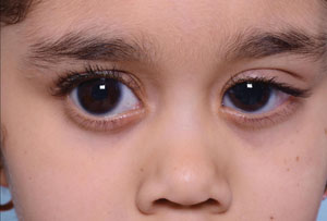glaucom congenital)