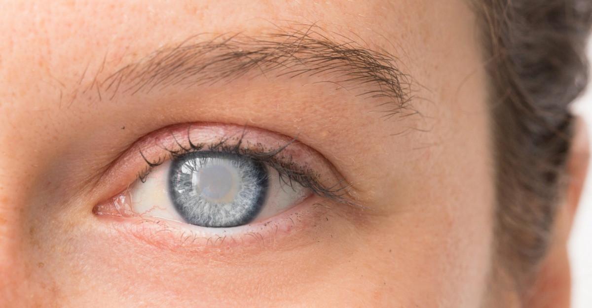 vedere încețoșată după îndepărtarea cataractei
