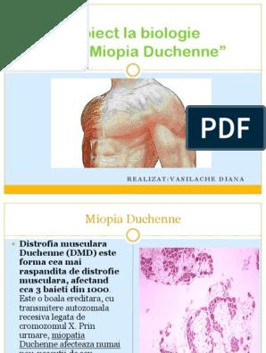 țesut conjunctiv și miopie