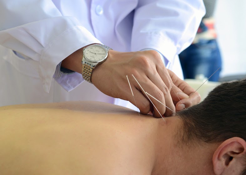 Scurtă introducere în acupunctură