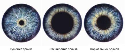 viziune cu pupile dilatate)