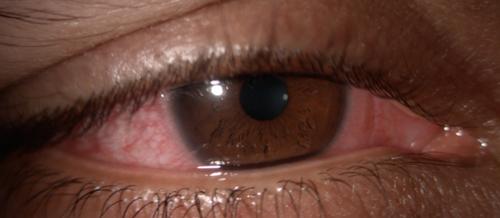 ce include un test ocular