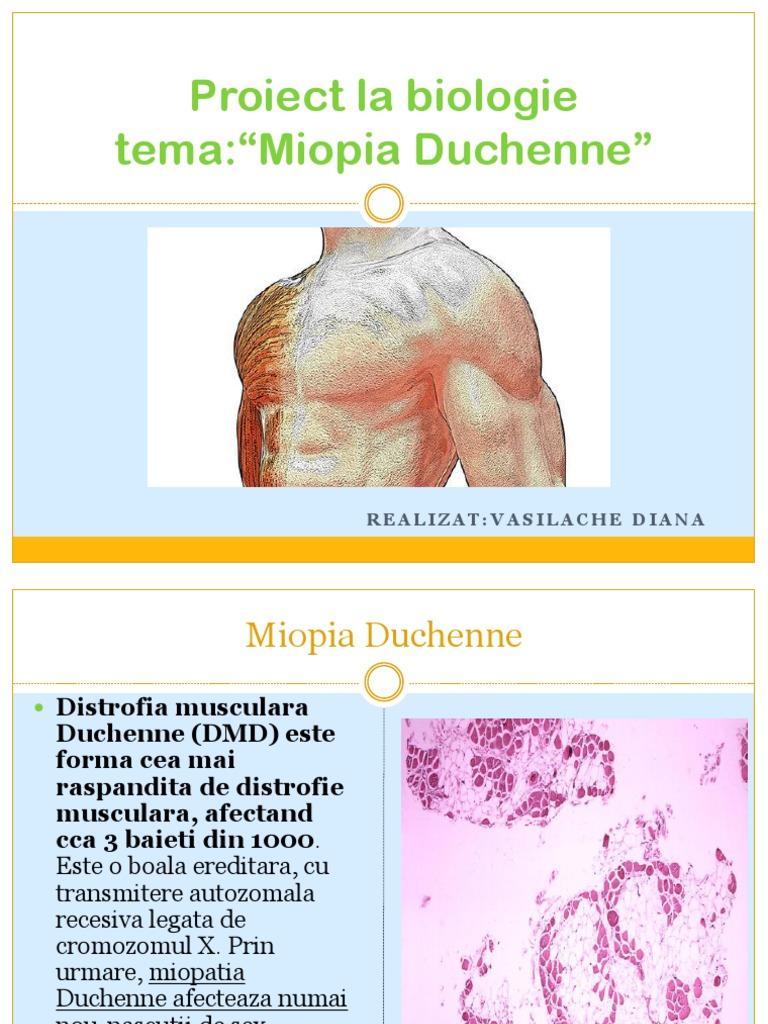 țesut conjunctiv și miopie)