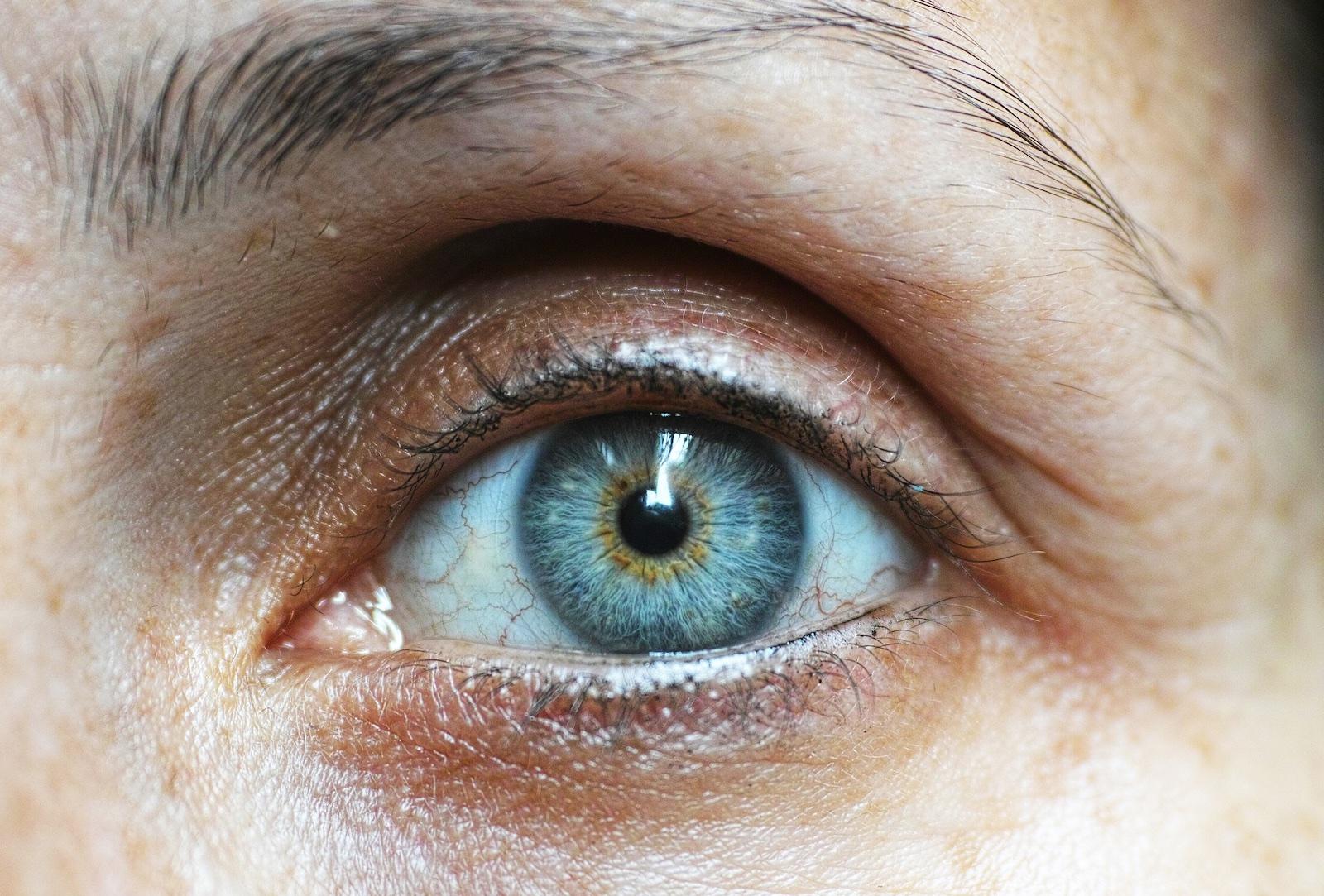 Cum să scadă presiunea oculară la domiciliu - Vasculita September