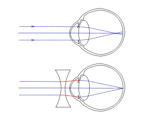 Miopia și hipermetropie, în același timp,