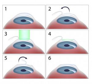 laser în oftalmologie)