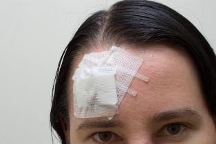 Leziunile traumatice craniocerebrale (Comotia cerebrala)