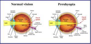 Miopia și hipermetropie: ce este? Cauze, prevenire, corectare