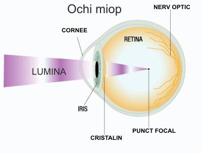 miopia apare din cauza