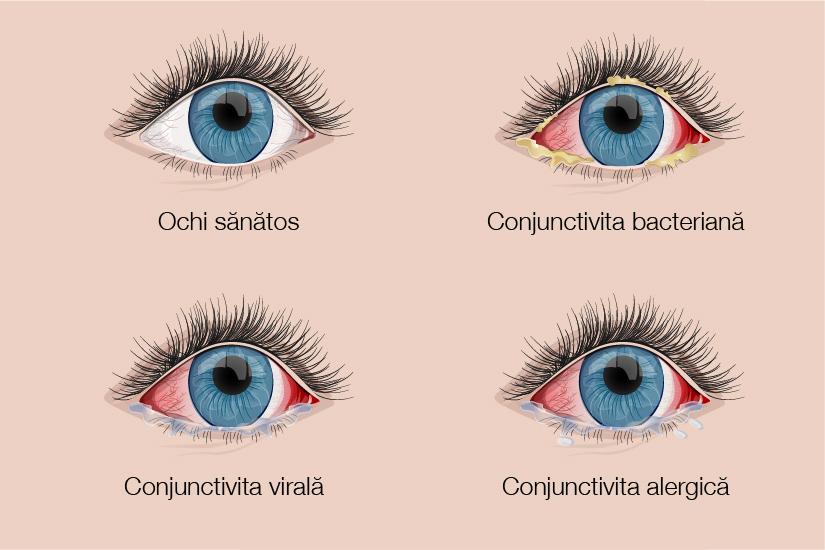 Conjunctivita, cea mai comună infecţie oculară