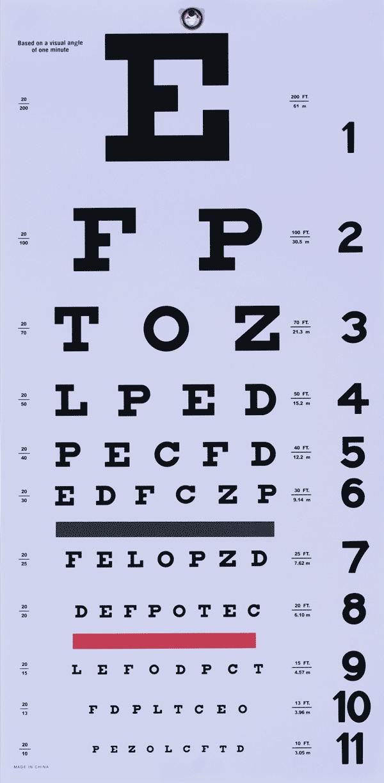 vedere încețoșată cum să eviți boli oculare din care se pierde vederea
