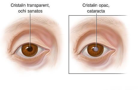 acuitatea vizuală cu aniridia