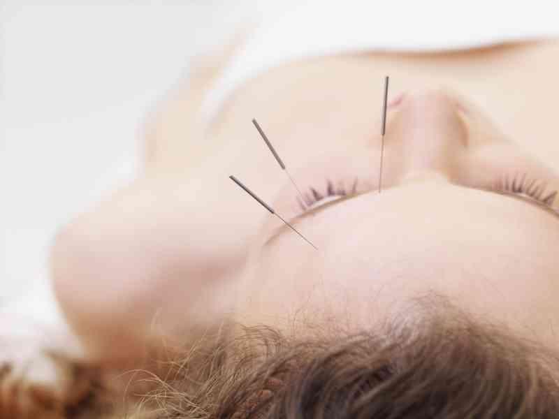ce este acupunctura pentru vedere