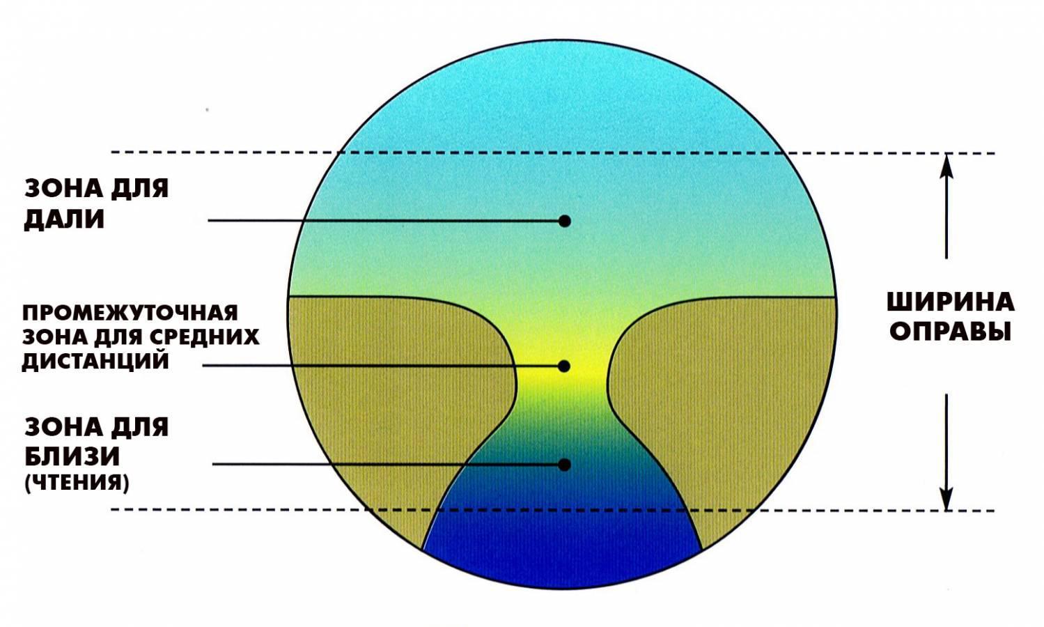 hipermetropie bifocală)