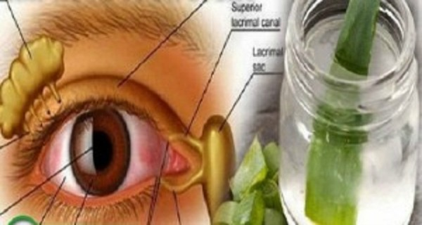 tratamentul vederii cu aloe