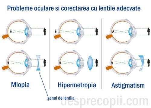 miopie și hipermetropie a ochilor