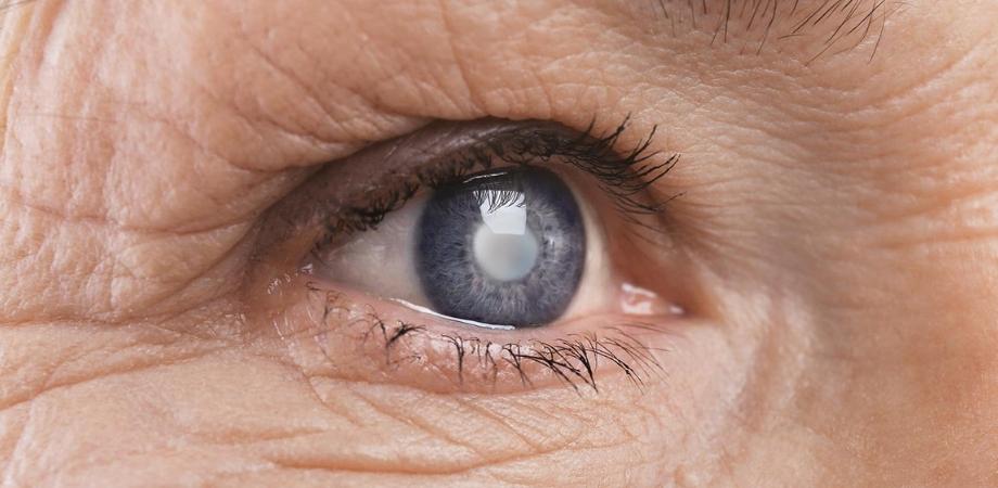 vedere încețoșată după îndepărtarea cataractei)