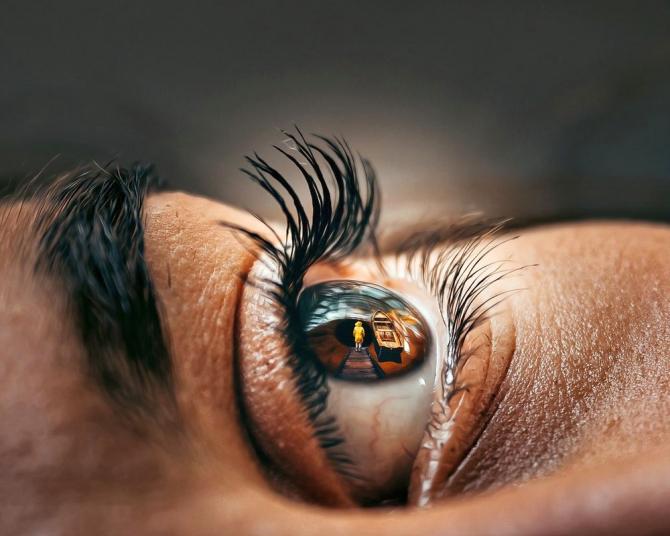viziune cu glaucom congenital