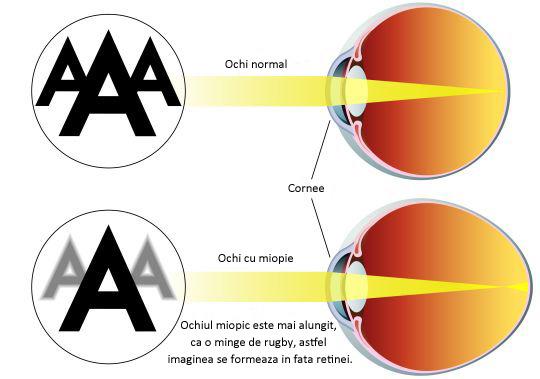 presiune asupra ochiului; vederea s-a deteriorat
