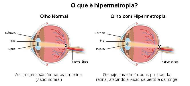 hipermetropie 3