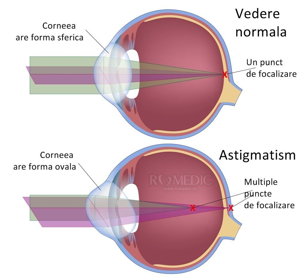 tratamentul vederii pentru astigmatism