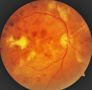 hemoglobina afectează vederea suspectată de tuberculoză pulmonară