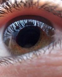vedere distorsionată a ochilor)