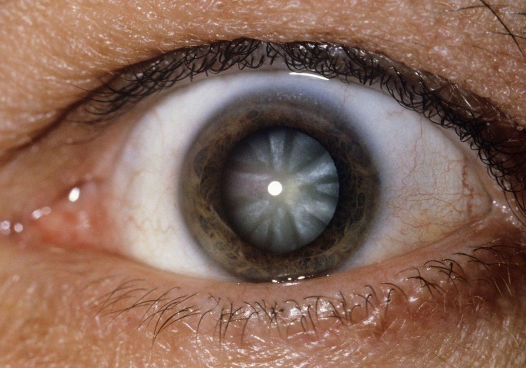 examinarea vederii după instilarea ochilor