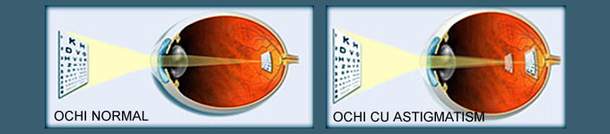 astigmatism cu miopie vedere miopie hipermetropie