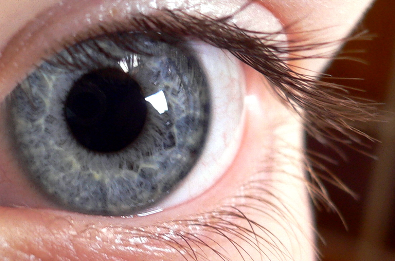 ochii răniți; vederea s-a deteriorat viziunea mea este una