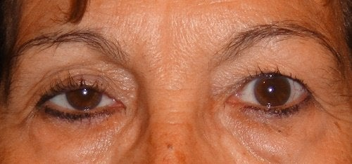 vederea cade în ochiul drept