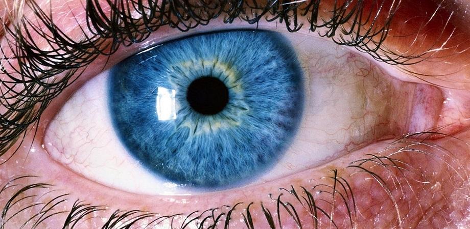 miopie de detasare a retinei