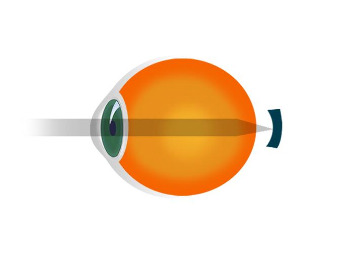 instruire vizuală pentru hipermetropi