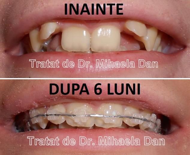 vederea s-a deteriorat după tratamentul dinților)